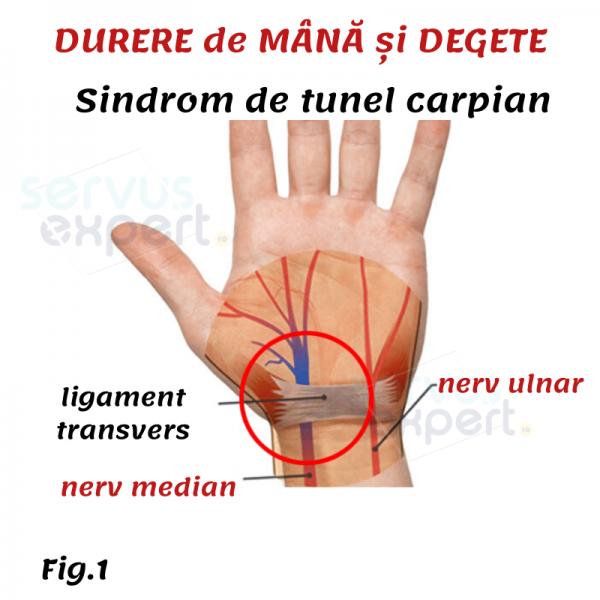 articulația pe deget doare ce să facă)