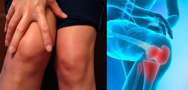 abraziunea articulației genunchiului)
