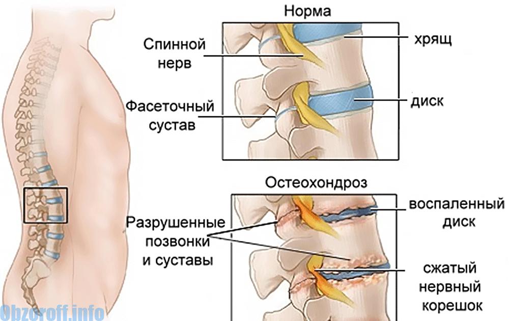 articulațiile degetului mare pe braț doare