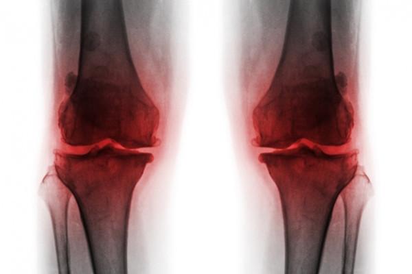 deteriorarea oaselor și a articulațiilor piciorului)