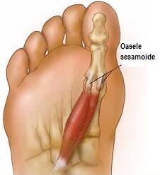 umflarea articulației pe picior pe degetul mare)