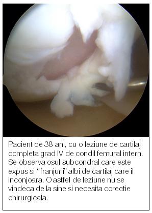 tratament articular al cartilajelor