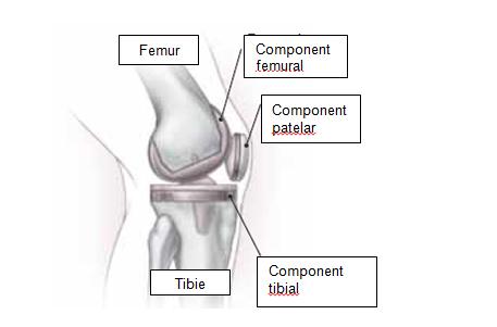 homeopatie remedii articulare dureri la nivelul articulațiilor și crăpături în
