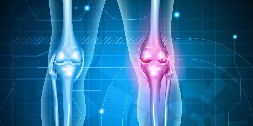 structura artrozei genunchiului