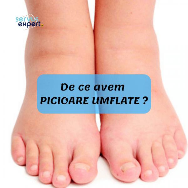 inflamația și umflarea articulațiilor piciorului)