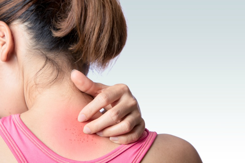 dureri articulare și musculare cu urticarie