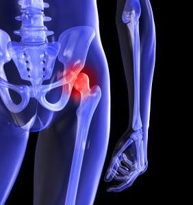 aerobic pentru apă pentru bolile articulare durere la nivelul articulațiilor șoldului