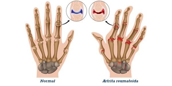 cum se tratează simptomele artritei reumatoide