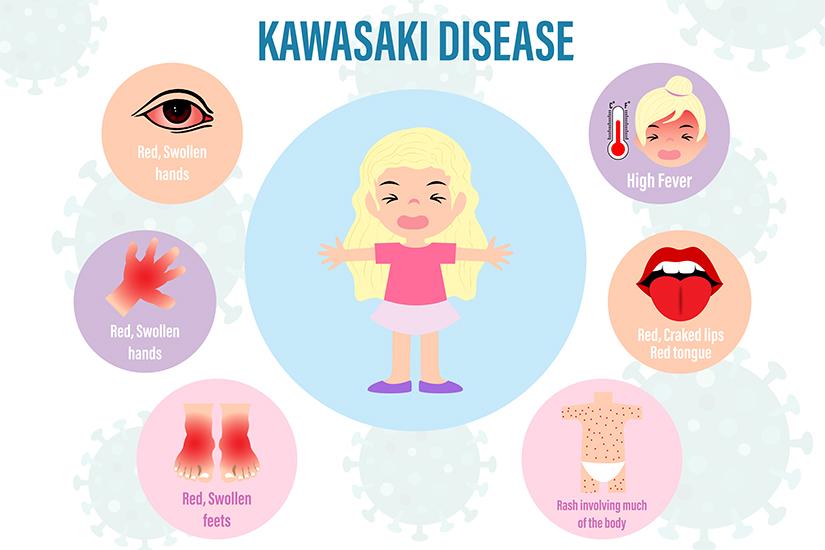 simptomele articulare ale bolii hepatice)