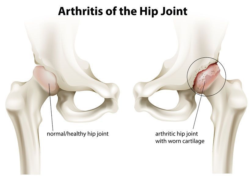 ameliorarea durerii pentru coxartroza articulației șoldului)