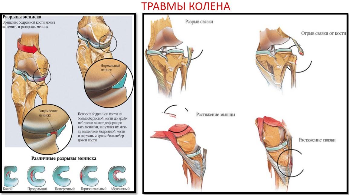 Cum rănesc articulațiile cu artroza