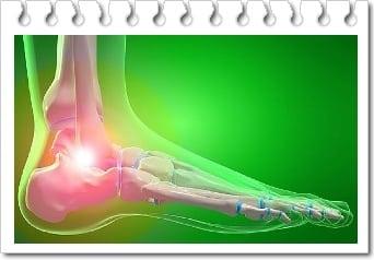 arin de dureri articulare infecție de tratament articular
