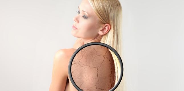 bolile pielii cotului)