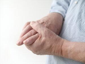 umflarea articulației cu diabet)