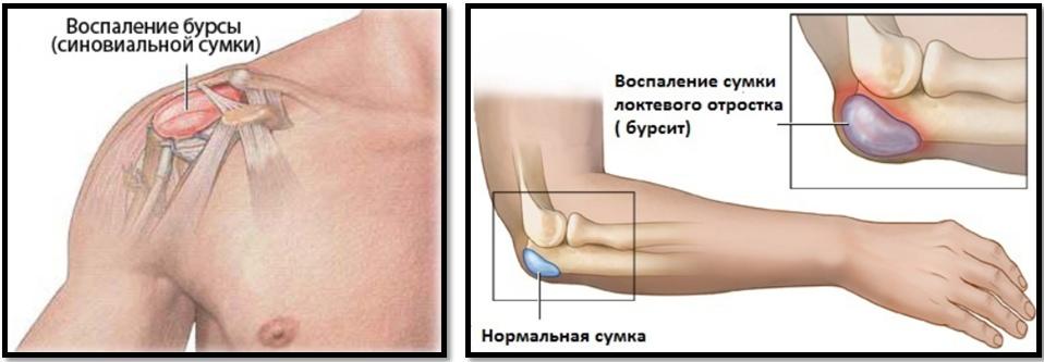 Articulație după durere la nivelul piciorului