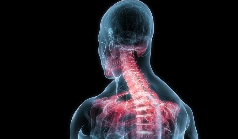 Crispa și doare articulația umărului. Neck crispat (torticolis): cauze, tipuri și simptome
