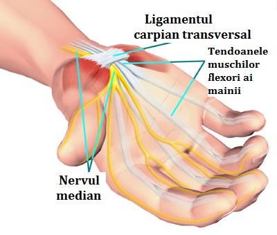 tratamentul sindromului de încheietura mâinii)