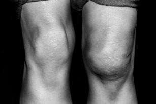 Ce este osteoscleroza
