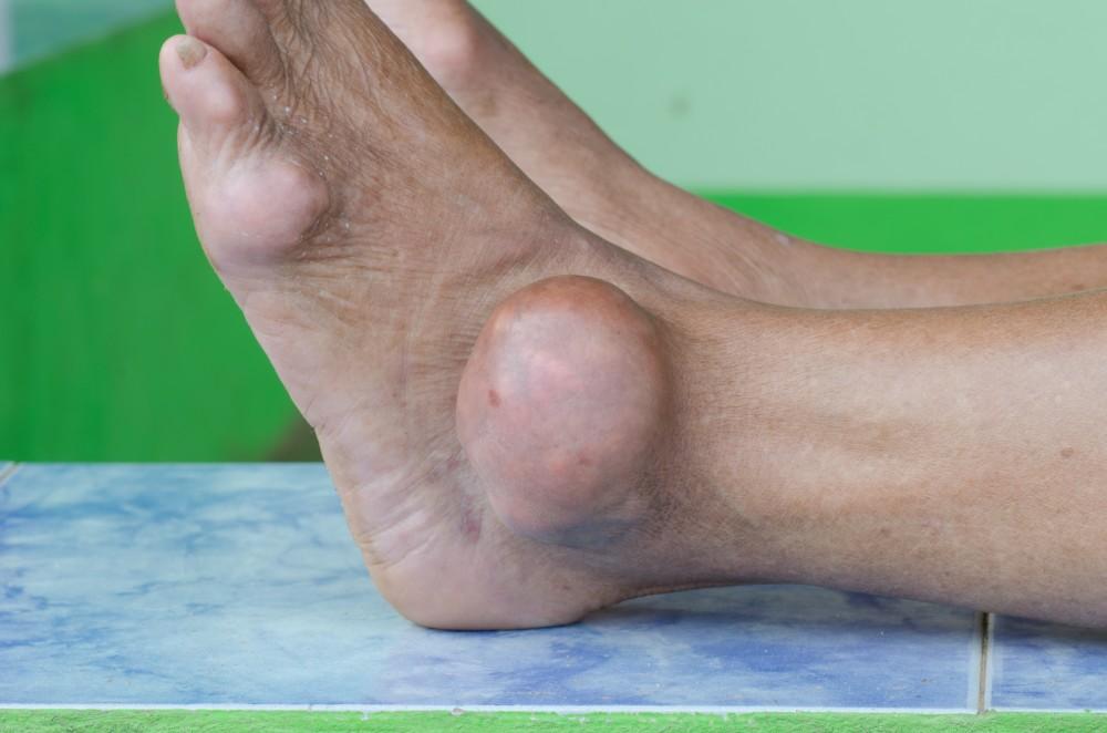 tratamentul întârziat al articulațiilor șoldului tratament articular cu braga