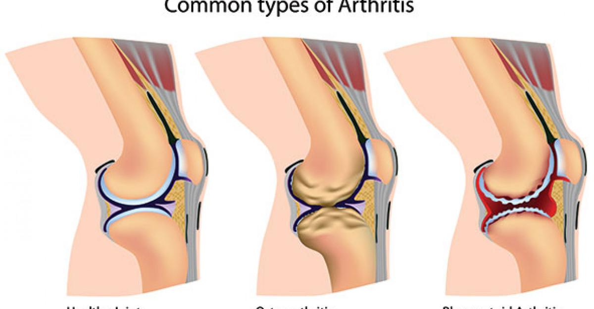 tratamentul eficient al deformării genunchiului