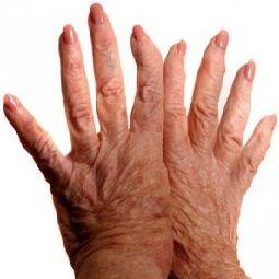 refacerea mobilității articulațiilor degetelor