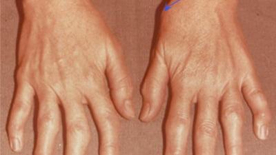 artroza articulațiilor simptomelor mâinii și tratament