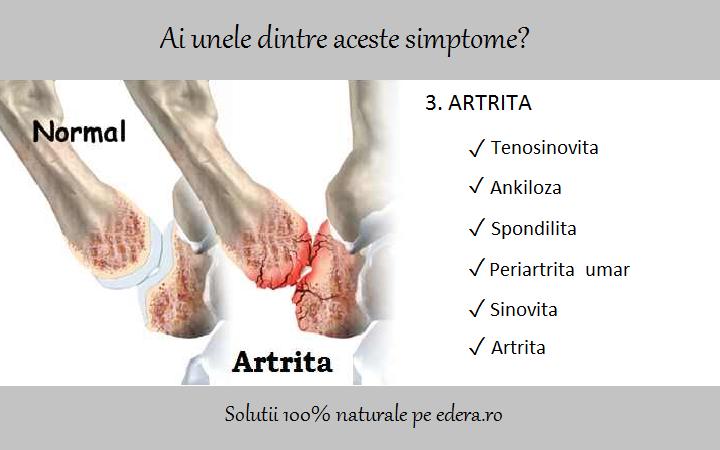 artrita cronică a brațului)