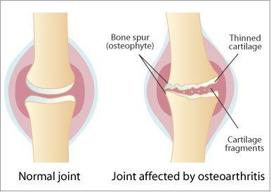ozokerită cu artroza articulației cotului)