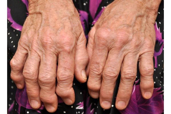 mâini pentru artrită