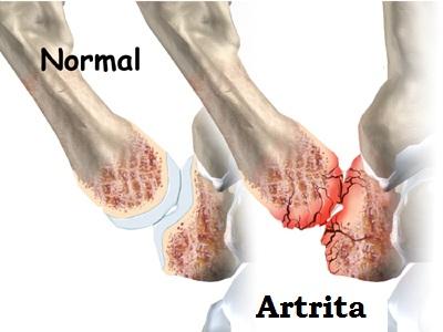 deteriorarea articulației degetului de la picior)