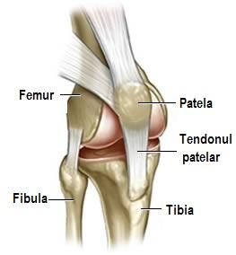 Ce este leziunea de tendon rotulian - Artroscopie de genunchi