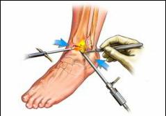 artroza articulației gleznei. tratament)