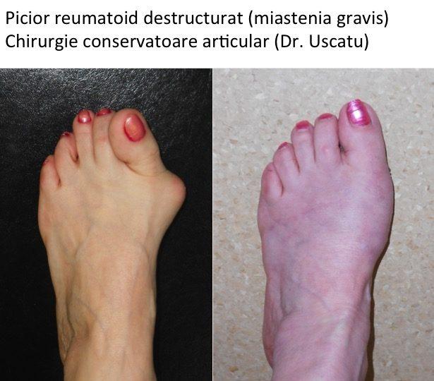 artroza reumatoidă a tratamentului piciorului