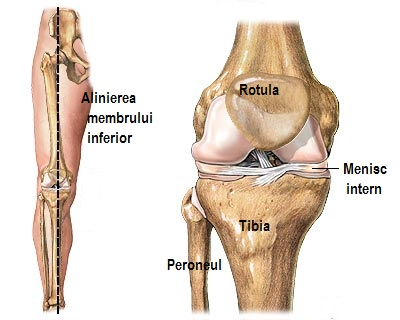 tratament cu artroza axială atlantis leziunea ligamentului extern al articulației genunchiului