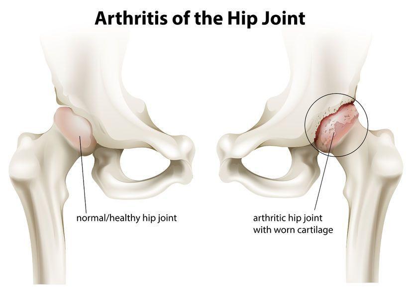 banda de alergare pentru artroza articulației șoldului
