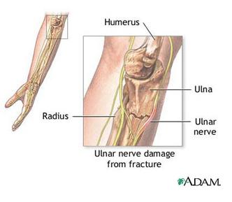 nivelul articulațiilor cotului sub piele cum să tratezi)