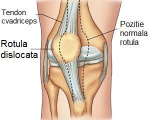 refacerea luxației genunchiului