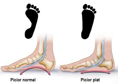 durere în jurul articulației piciorului)