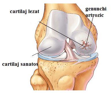 artroza articulației genunchiului)