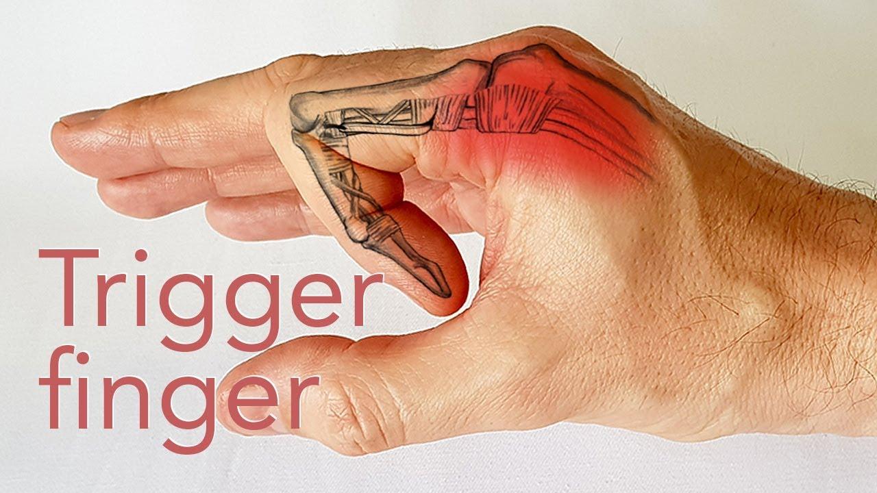 articulația doare sub omoplat brațul nu se ridică)
