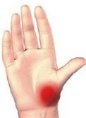 durere în articulația bazei degetului mare)