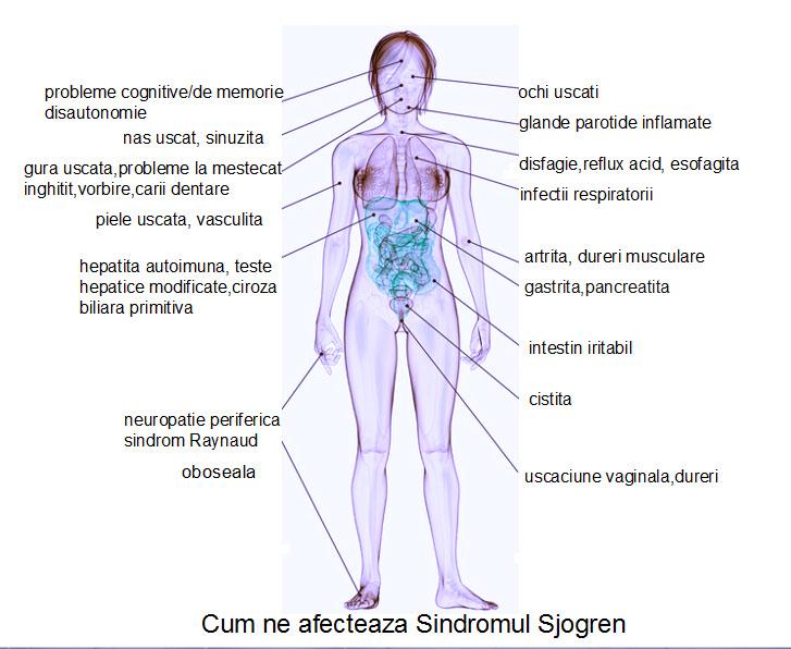 simptome dureri articulare gură uscată