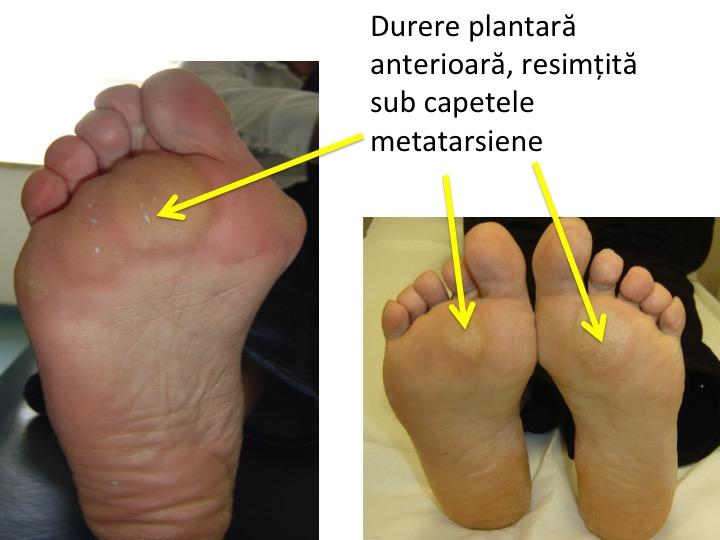 consolidarea tratamentului piciorului)