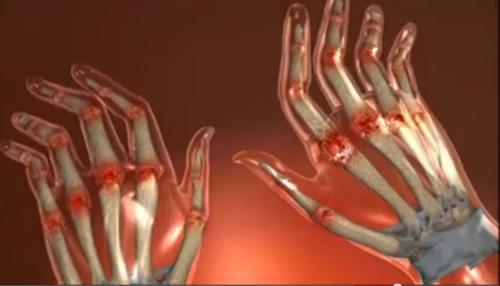 cu artrita reumatoidă, articulațiile sunt mai frecvent afectate