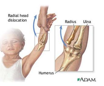 braț dureros în articulația cotului în mișcare