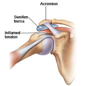 durere în articulația umărului cu un suspin)