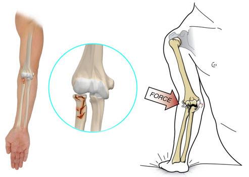 recuperare după fractura articulației cotului