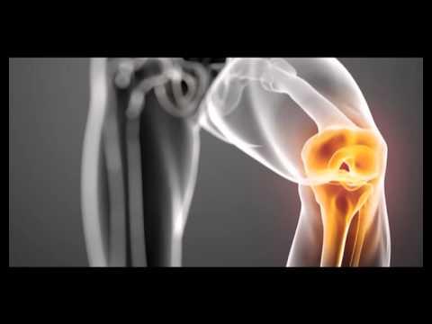 youtube tratamentul artrozei articulare a genunchiului