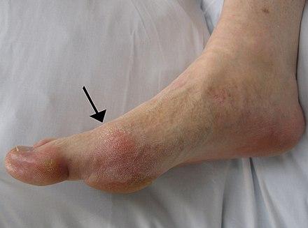 Durere articulară în gută degetului mare, daca ai anumite...