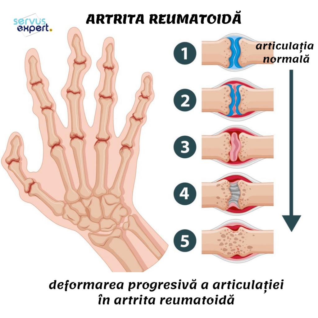 artrita reumatoidă a degetelor
